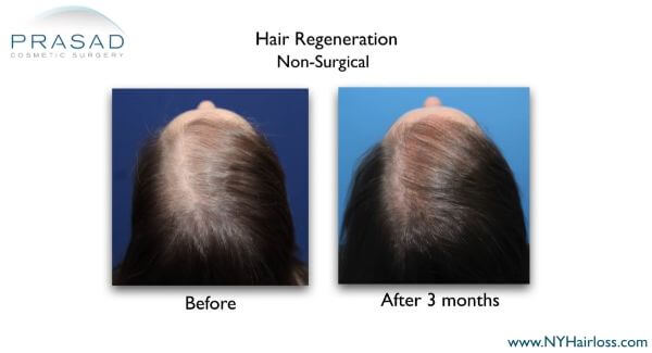 PRP ACell before and after